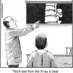 You'll see on the X-ray...
